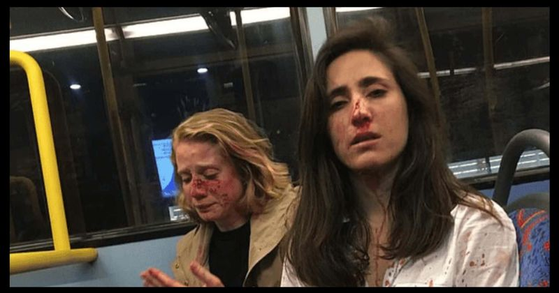 Flight attendant and her girlfriend brutally beaten on bus by gang
