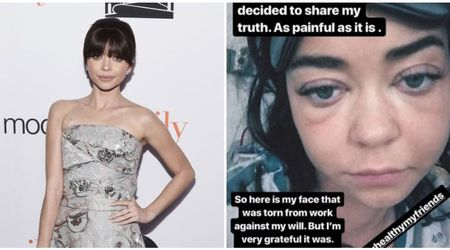 Sarah Hyland shares 'painful' photograph of her face after she is hospitalized amid health battle