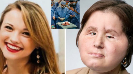 Woman, 21, who shot herself in the head, gets a second chance at life with a face transplant