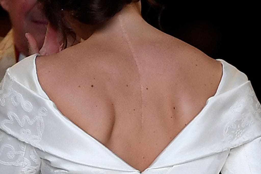 Eugenie did not want to hide the scar from her scoliosis surgery (Getty Images)