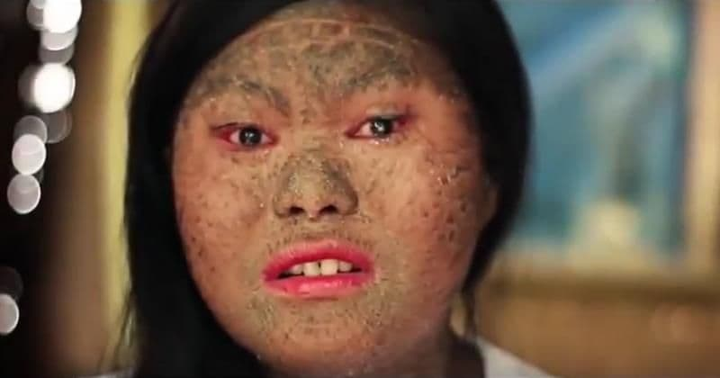 Rare condition leaves this teenager covered in scales, and bullies are making her life hell