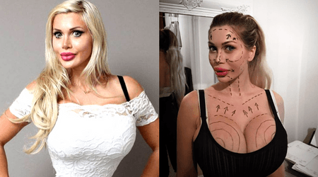 Woman who has had over 200 surgeries to look like a cartoon won't stop even though doctors have refused more procedures