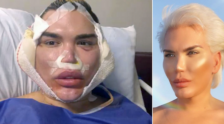 Human Ken Doll Rodrigo Alves warns against facial procedures after insides of his face looked like 'spaghetti and meatballs'