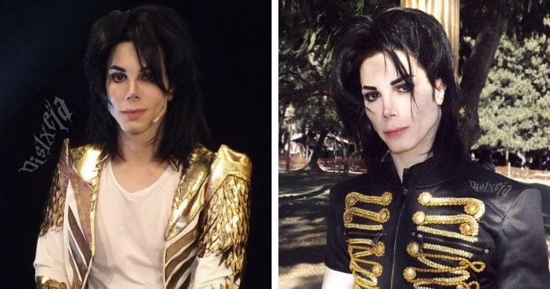 Man spends $30,000 on 11 plastic surgeries to look like Michael Jackson, says still not satisfied with his look