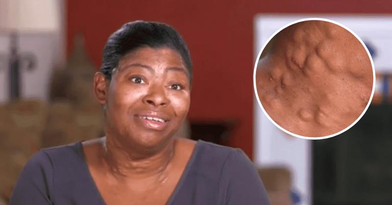 Dr Pimple Popper Dr Lee Helps Woman Get Her Life Back
