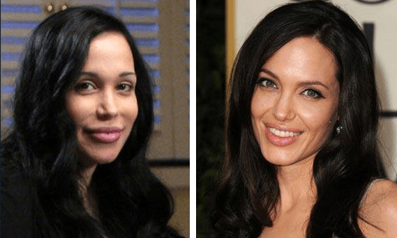 Woman Got 50 Surgeries To Look Like Angelina Jolie