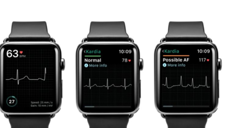 Medical accessory for Apple Watch could be the answer to being one step ahead of heart problems
