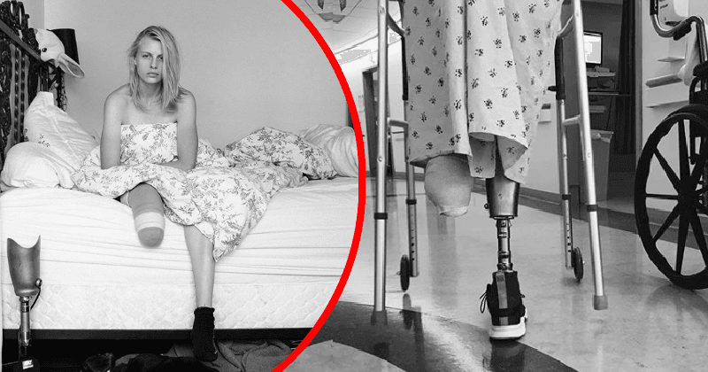 Model Lauren Wasser loses second leg to Toxic Shock Syndrome, but her reaction will inspire you