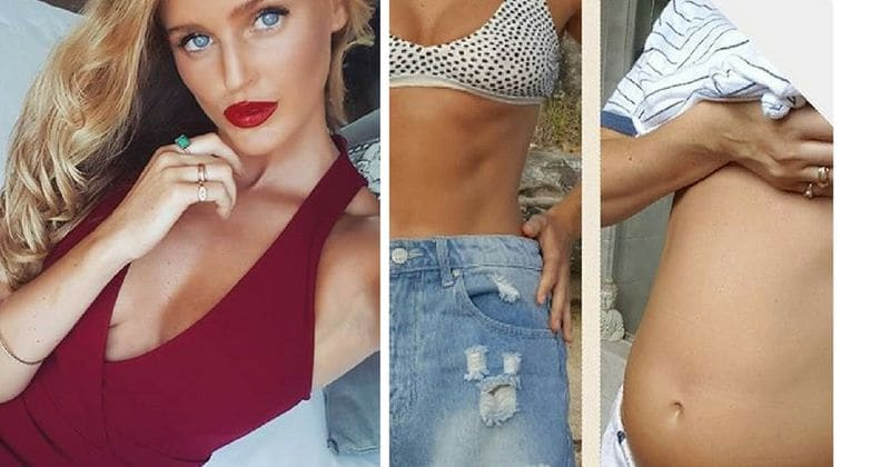 Instagram model posts bloated stomach pics to show the severe reality of IBS