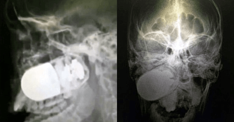 NSFW: Surgeons pull out live grenade lodged inside soldier's jaws